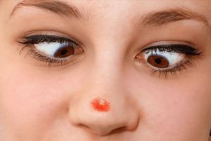 Прыщик на кончике носа примета у девушки